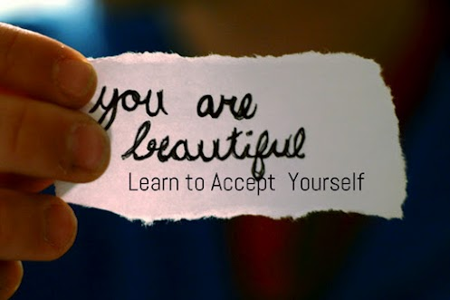 You-are-beautiful.-Learn-to-accept-yourself